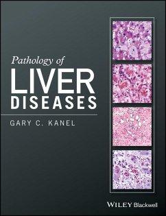 Pathology of Liver Diseases (eBook, ePUB) - Kanel, Gary C.