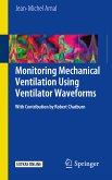 Monitoring Mechanical Ventilation Using Ventilator Waveforms (eBook, PDF)