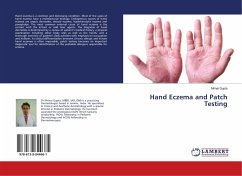 Hand Eczema and Patch Testing