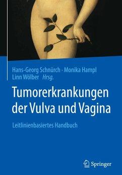 Tumorerkrankungen der Vulva und Vagina