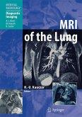 MRI of the Lung (eBook, PDF)