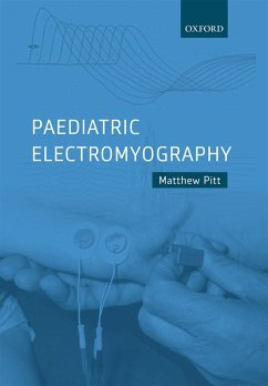 Paediatric Electromyography