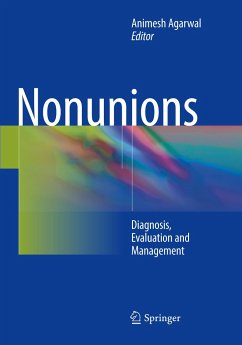 Nonunions