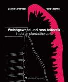 Weichgewebe und rosa Ästhetik in der Implantattherapie