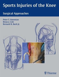 Sports Injuries of the Knee (eBook, ePUB)