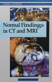 Normal Findings in CT and MRI (eBook, ePUB)