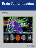 Brain Tumor Imaging (eBook, ePUB)
