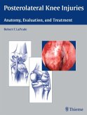 Posterolateral Knee Injuries (eBook, ePUB)