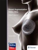 Breast Augmentation Video Atlas (eBook, ePUB)