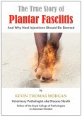The True Story of Plantar Fasciitis: And Why Heel Injections Should Be Banned (eBook, ePUB)