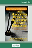 The Amazing Way to Reverse Heart Disease