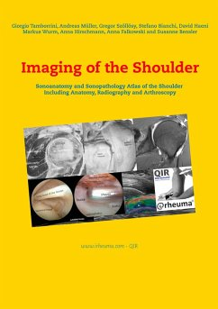 Imaging of the Shoulder (eBook, ePUB)
