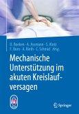 Mechanische Unterstützung im akuten Kreislaufversagen (eBook, PDF)