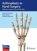 Arthroplasty in Hand Surgery