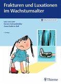 Frakturen und Luxationen im Wachstumsalter (eBook, PDF)