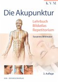Die Akupunktur (eBook, ePUB)