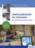 Videofluoroskopie des Schluckaktes