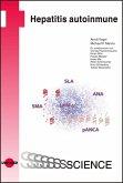 Hepatitis autoinmune (eBook, PDF)